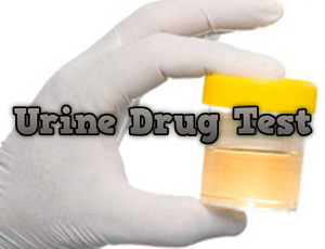 Learn How To Pass A Urine Drug Test.